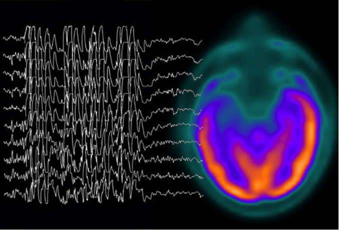 The brain waves during an epileptic seizure.